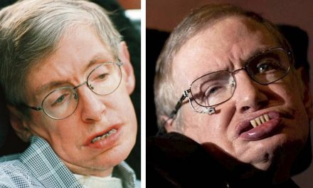 Stephen Hawking's Mysterious New Teeth